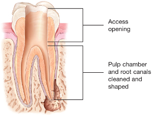 tooth illustration of cleaned and shaped root canals