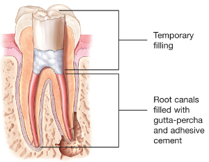 Tooth illustration with root canals filled
