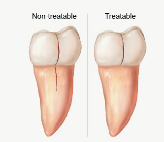 Illustration of cracked teeth, non-treatable and treatable