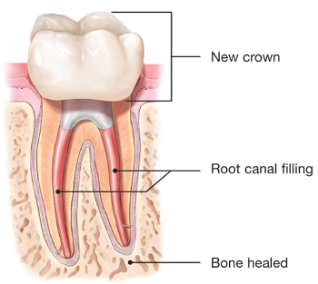 Illustration of healed retreated tooth