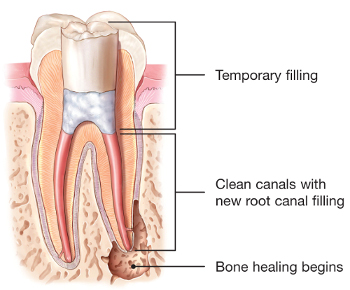 Illustration of retreated tooth with temporary filling
