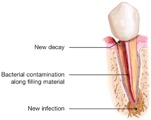 Illustration of tooth needing retreatment due to decay and infection