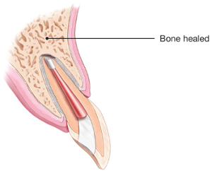 Illustration of healed tooth after endodontic surgery