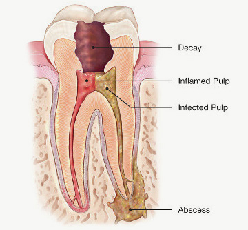 inflamed and infected tooth illustration