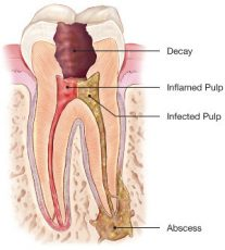 Abscessed tooth illustration