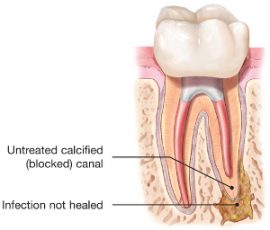 Illustration showing infected tooth root that has not healed properly
